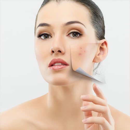 Guide to clearer skin: How to get rid of dark spots?